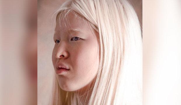 Dívka s albinismem už v dětství dostala šanci na šťastný život v nové rodině: Slečna s albinismem našla své místo na světě