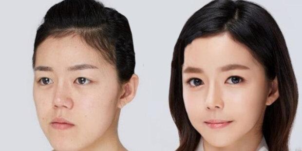 Klinika ukázala, jak probíhá proces: země, kde bez zlepšení obličeje nenajdete prestižní práci