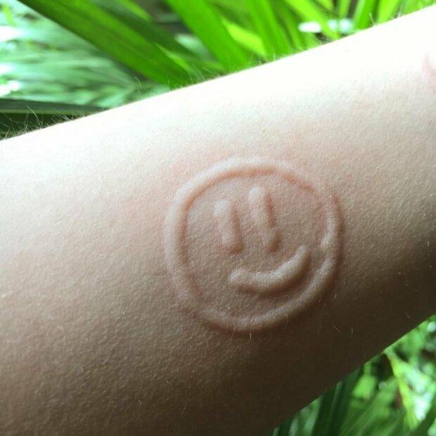 Emma má alergii, proto svou kůži používá jako umělecké plátno