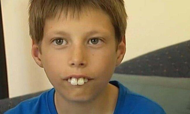 Jako teď vypadá teenager, který měl největší zuby na světě