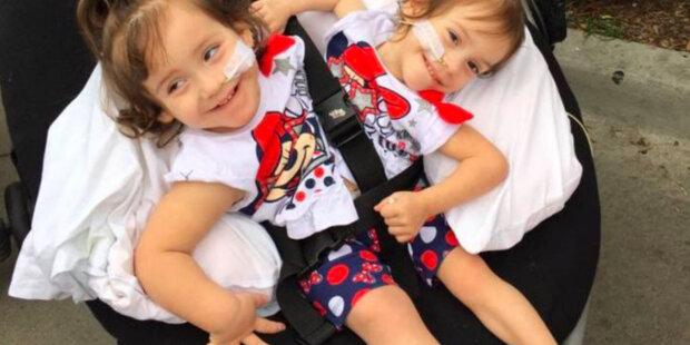 Jak žijí siamská dvojčata se společným tělem půl roku po oddělení