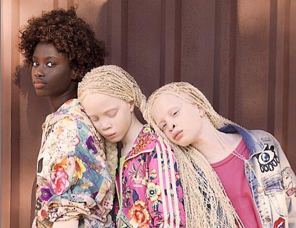 """""""Neobvyklá, vzácná krása"""": albínská dvojčata vyrostla a nyní jsou modelky. Jak se změnily"""